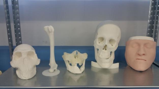 biomodelos-planificacion-quirurgica